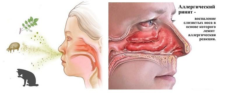 аллергический-ринит