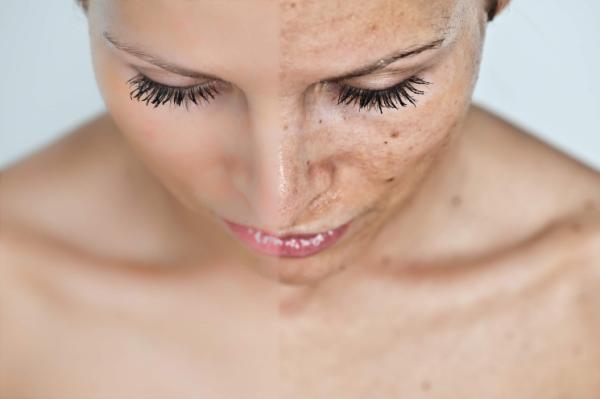 Ультразвуковая и механическая чистка лица