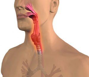 лечение тонзилита