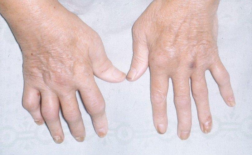 psoriaticheskiy-artrit