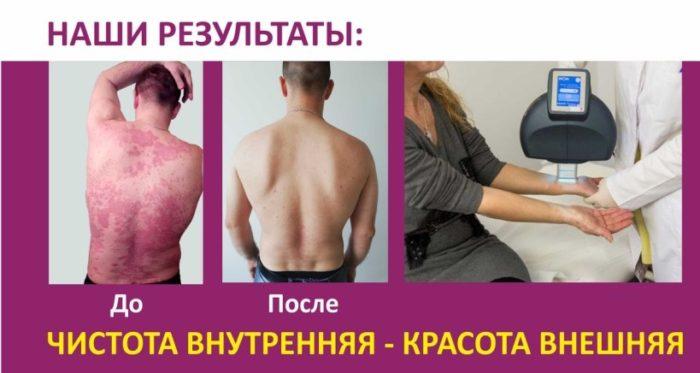 псориаз до и после