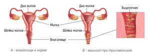vaginit lecheniye