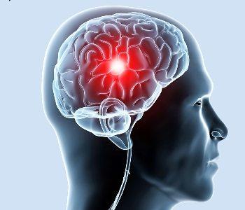 болезнь-сосудов-головного-мозга