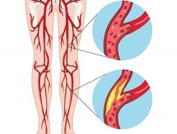 болезнь_периферических_артерий