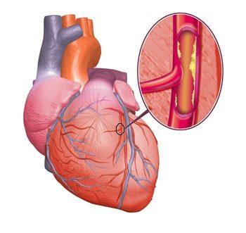 ишемия-сердца