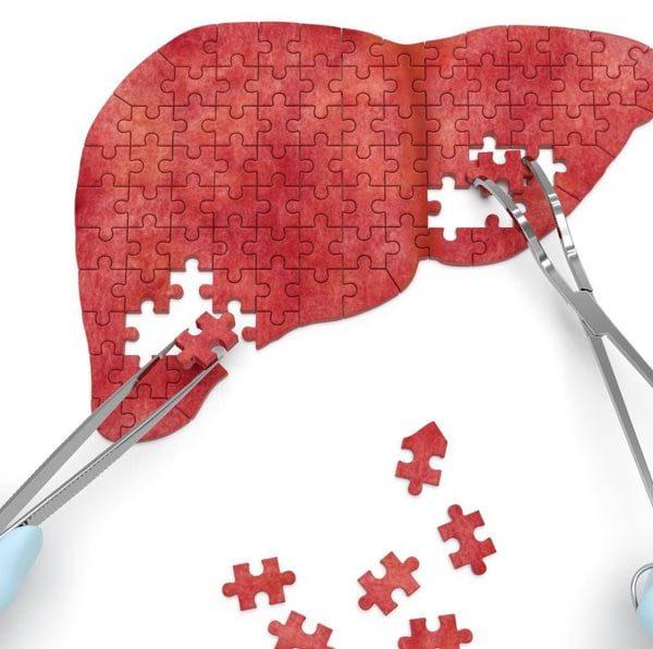 хронический-гепатит