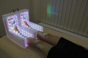 фотонная-терапия