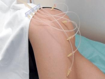 озонотерапия при целлюлите