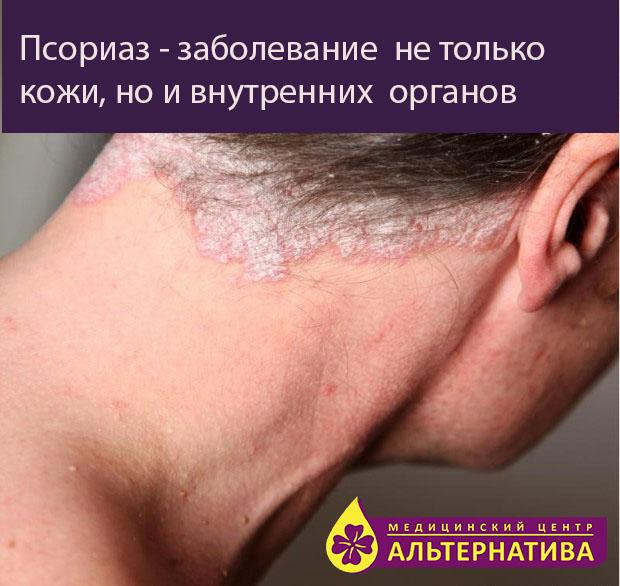 Псориаз И Заболевания Печени
